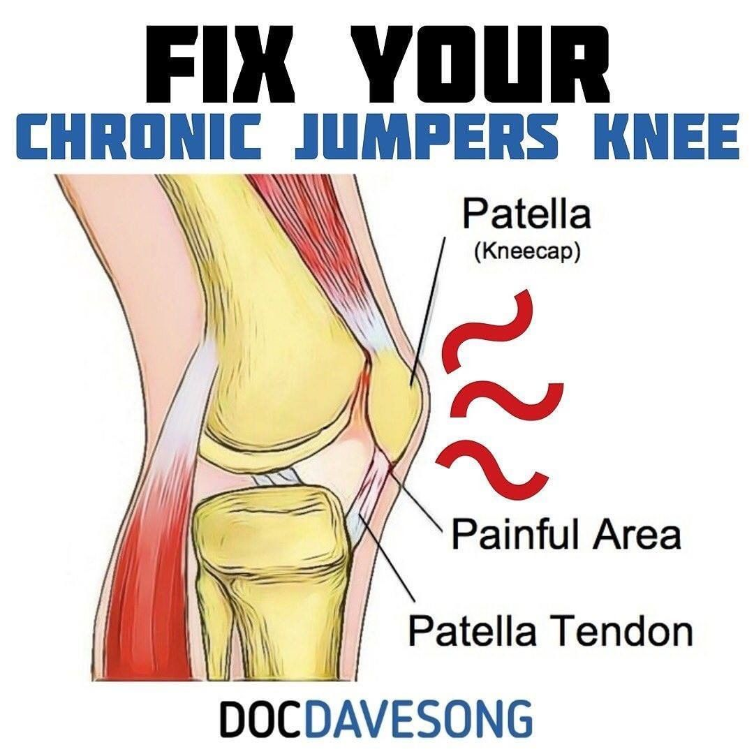 17++ Can you get osteoporosis in your knees information
