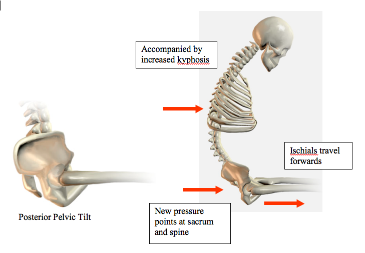 Practical Seating Considerations Posterior Pelvic Tilt Clinical