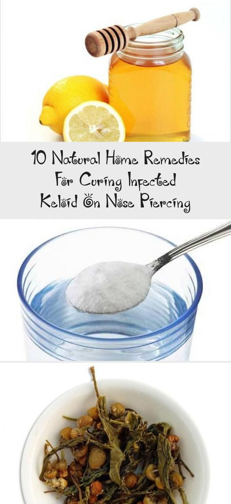 10 natural home remedies for curing infected keloid on
