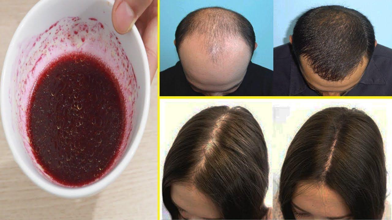 Stopper La Chute Des Cheveux Et Repousser Rapidement En 7 Jours En Utilisant Ce Mélange
