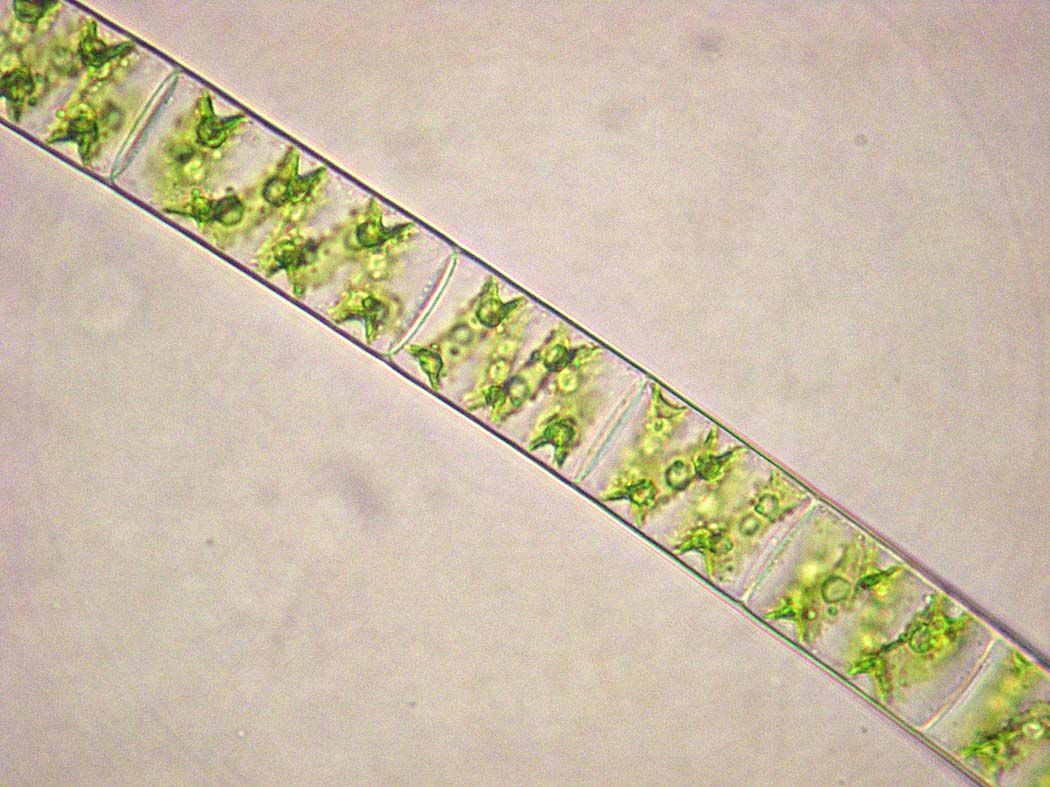 Spirogyra Cell Diagram Pull Switch Wiring Uk Cells Tissues Physiology Pinterest