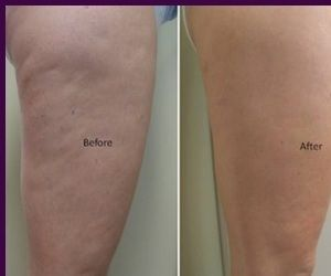 Cellulite Reduction Presetned By Fat Cavitation Perth