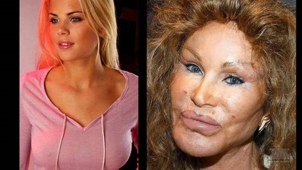 10 Celebrity Before-And-After Plastic Surgery Disasters