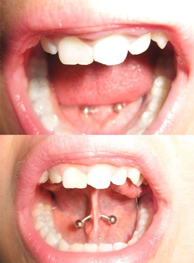 Piercing Web (frenillo de la lengua)