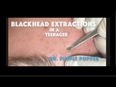 Comedone Extractions For Teenage Acne For Medical Education