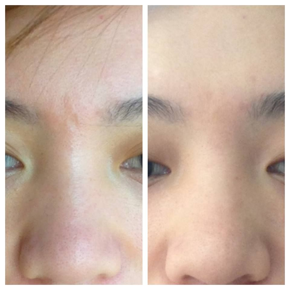 How To Fill Scars On Face With Makeup Wajimakeup Co