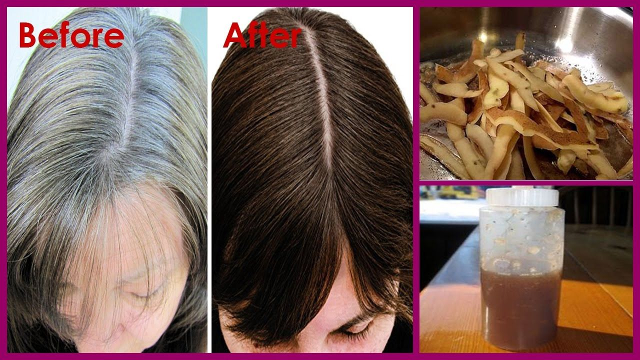 White Hair To Black Permanently In 7 Days With Potato Peel Magical Rem Natural Gray Hair Remove Gray Hair Natural Hair Styles