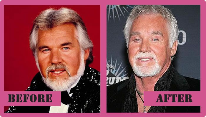 Kenny Rogers Plastic Surgery Before And After Kenny Rogers