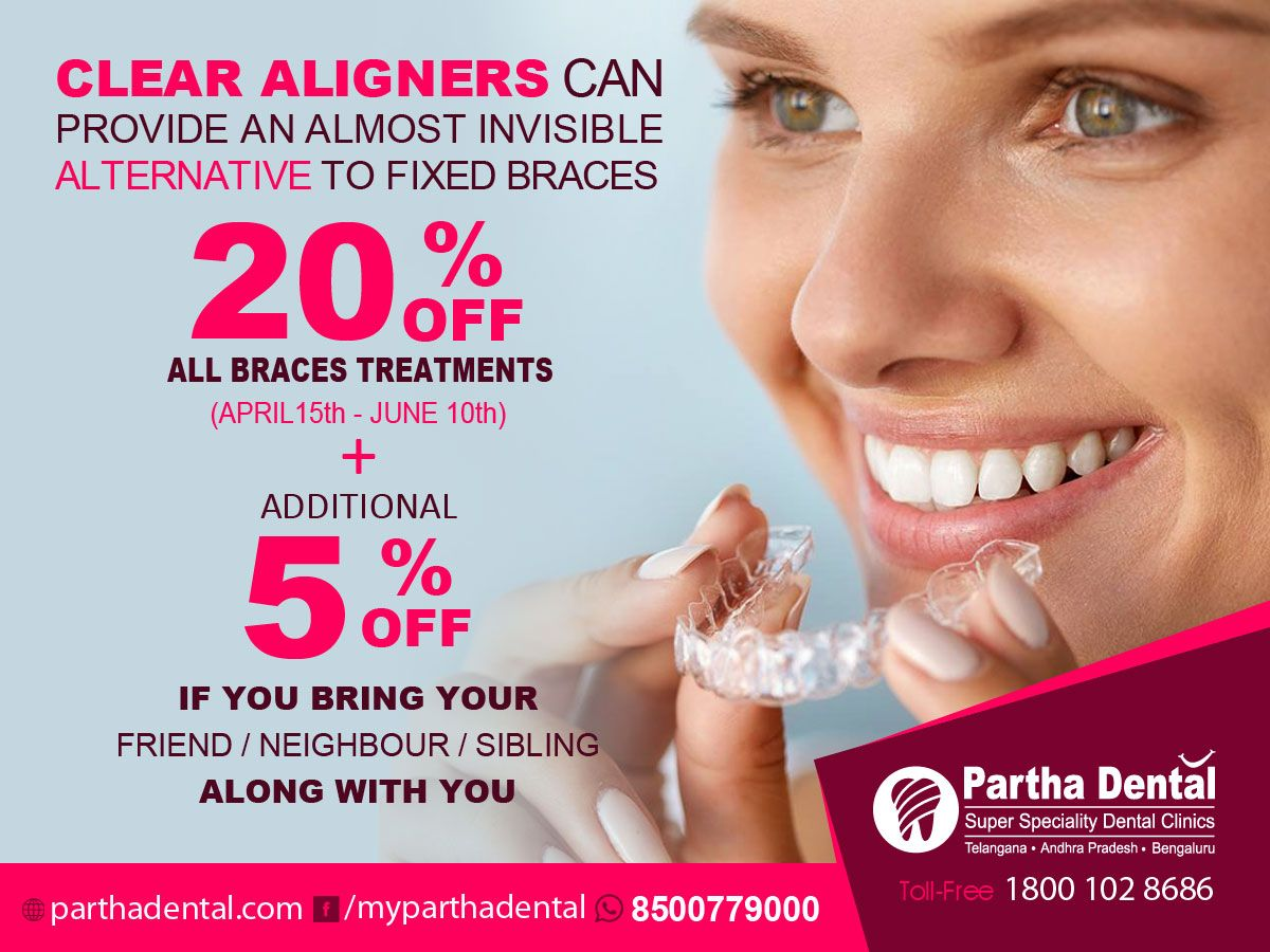 Clear Aligners Can Provide An Almost Invisible Alternative To Fixed Braces 20 Flat Discount April 15th To June 1 Braces Treatment Dental Clinic Fixed Braces