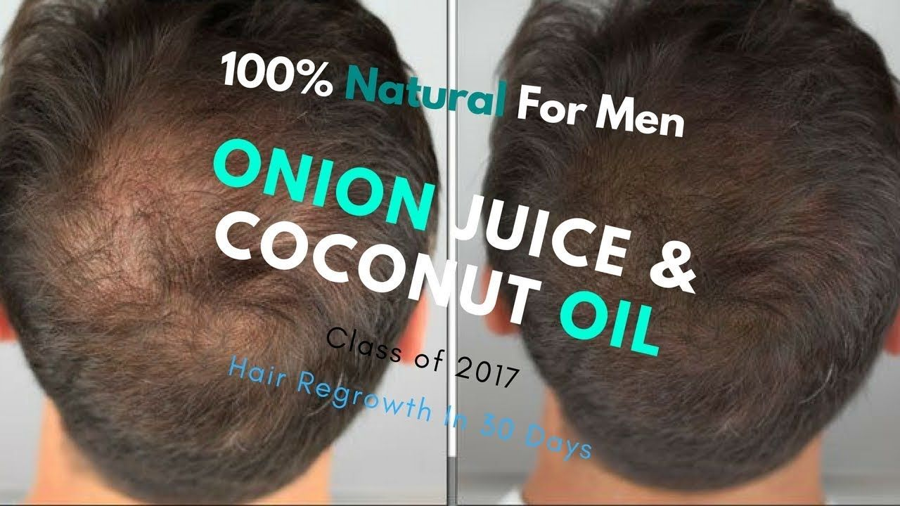 onion juice & coconut oil for hair regrowth in 30 days : 100