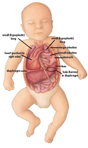 congenital diaphragmatic hernia final cdh pinterest