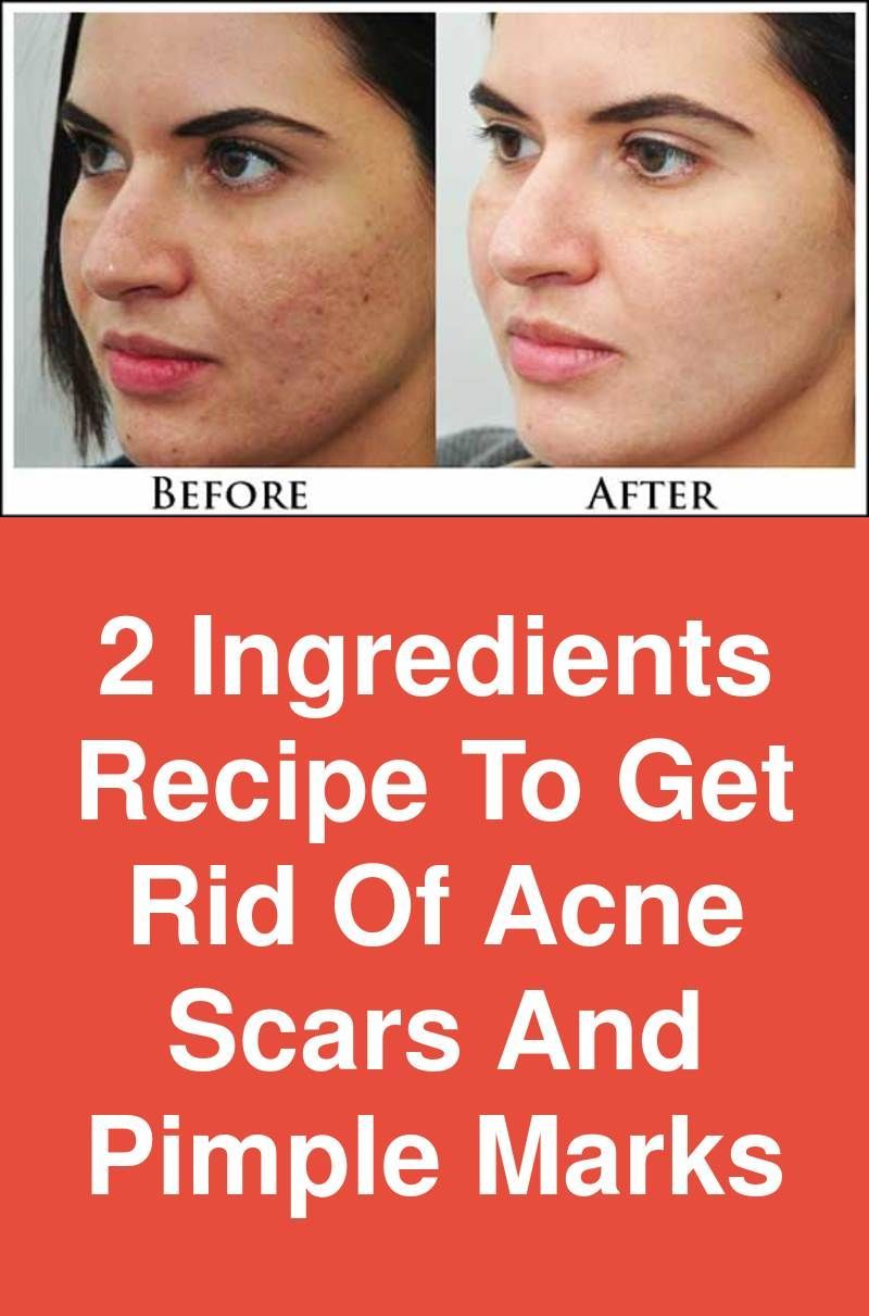 How to get rid of pimples marks in one night