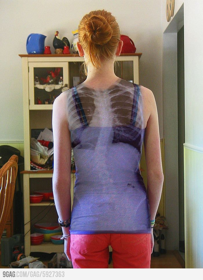 What A Scoliosis Spine Looks Like On Its Owner Scoliosis Spinal Disease Awareness