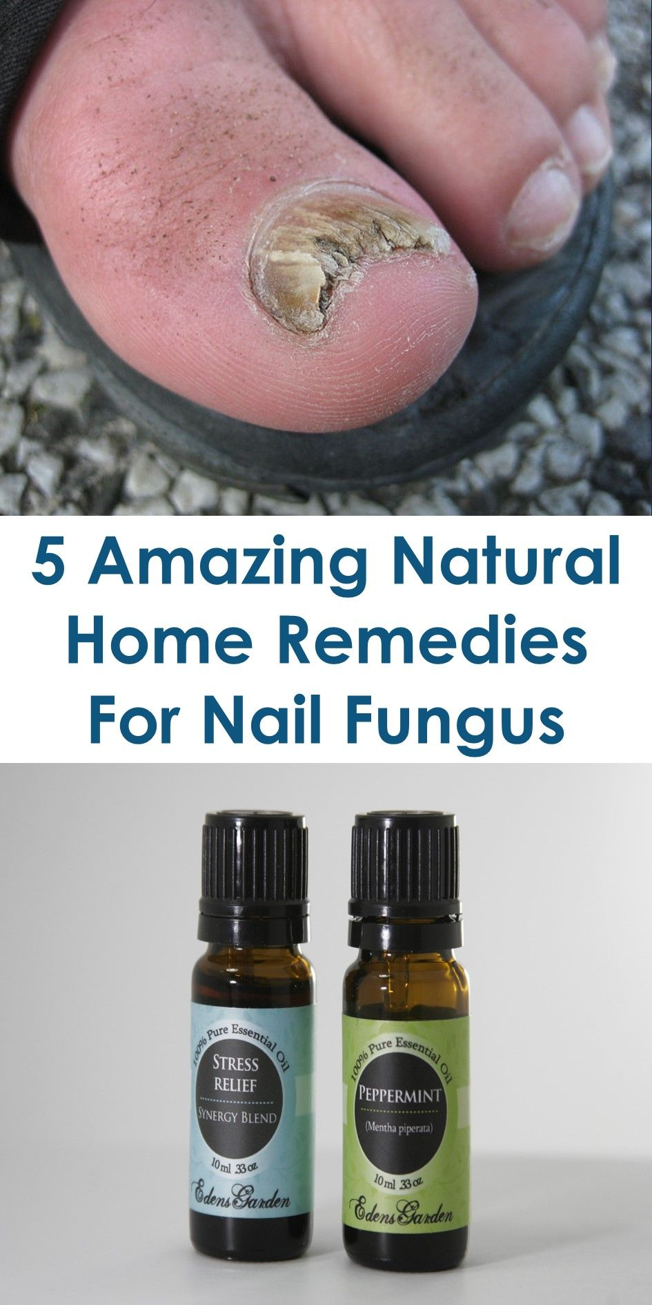 18 Natural Home Remedies And Treatments For Nail Fungus | Remedies ...