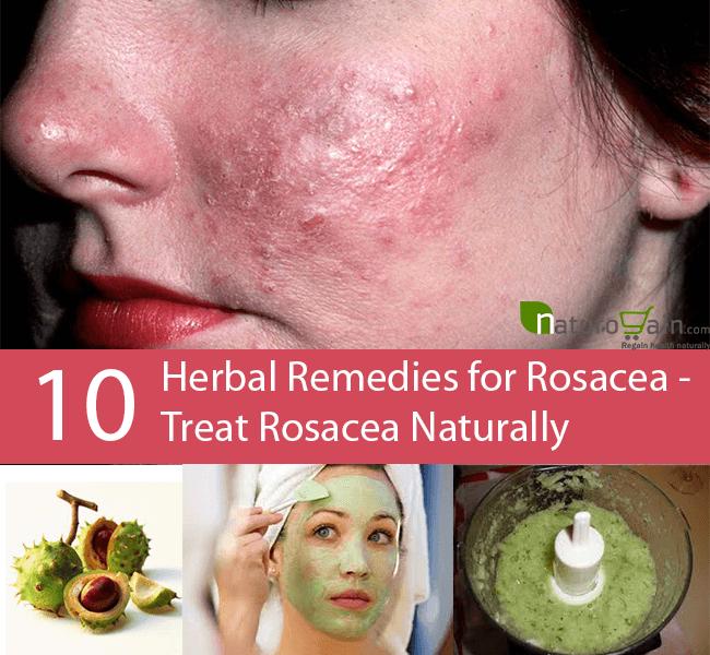 10 Powerful Herbal Remedies For Rosacea Rosacea Natural