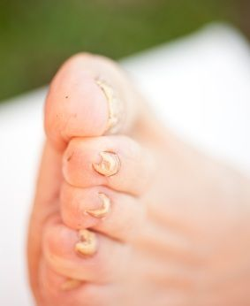 How To Get Rid Of Bad Toenail Fungus | Beaty & Health | Toe fungus ...