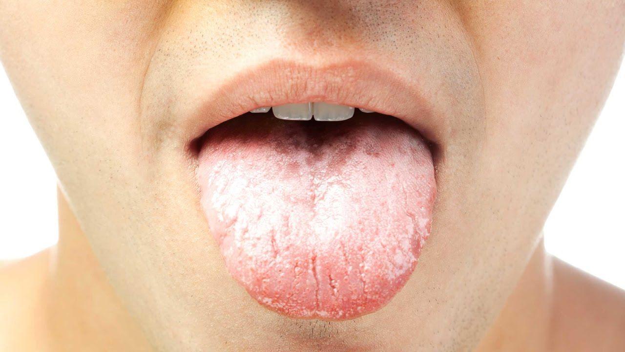 58a691d1ba2753077d967031b1b385da - How To Get Rid Of A White Tongue Naturally