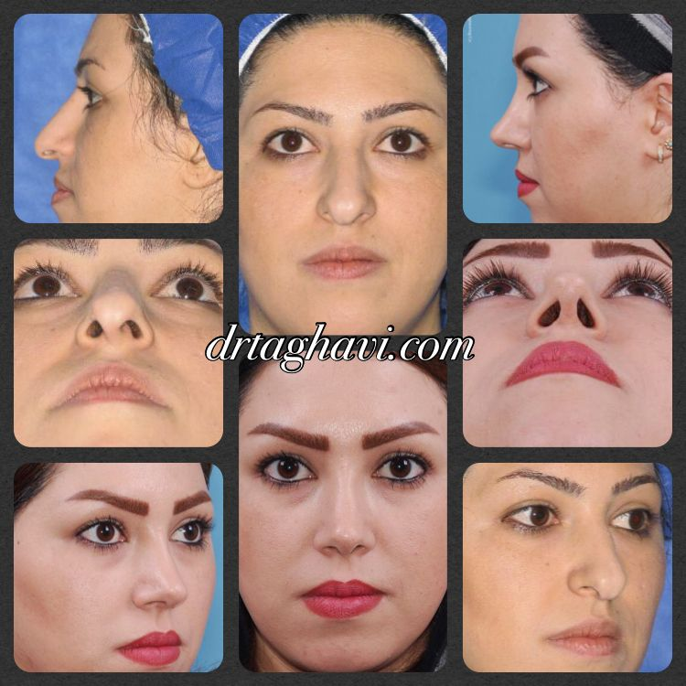 Two years after Rhinoplasty Rhinoplasty, Nose job, Poster