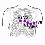 Derivaciones Y Electrodos Precordiales Del Ekg Ekg Cardiology Cardiac