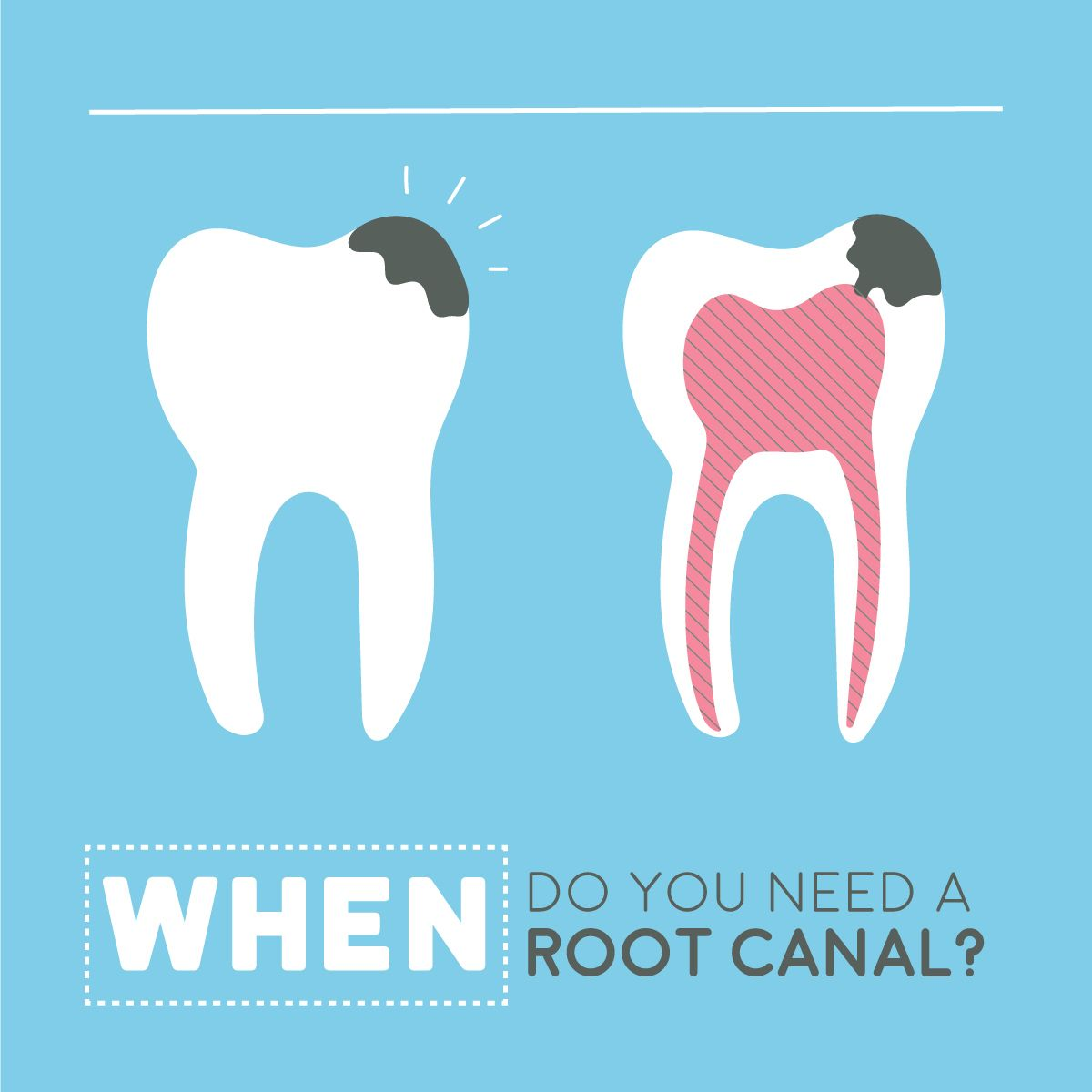 ROOT CANALS SAVE TEETH, but are widely misunderstood! They
