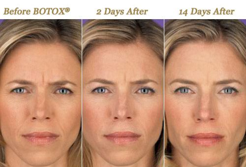 3 Phases of botox  Before, 2 days after injections and 14
