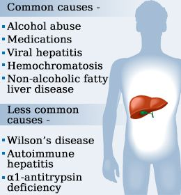 what do raised liver enzymes mean
