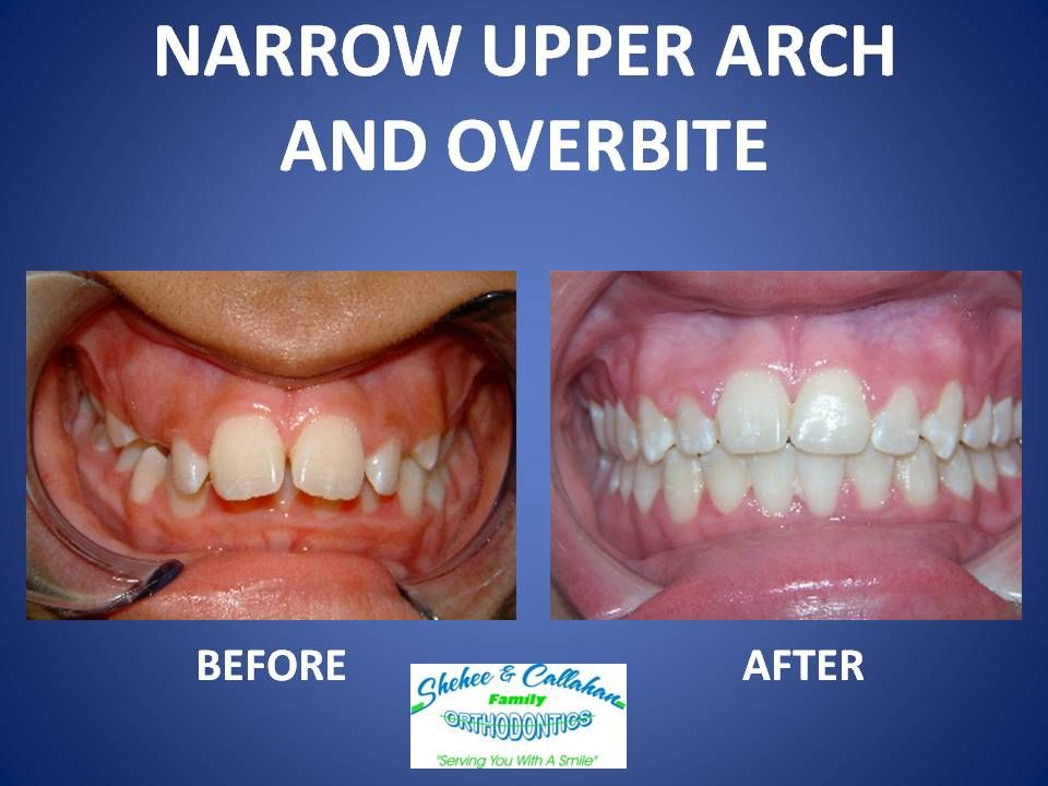 Braces before and after narrow upper arch and overbite