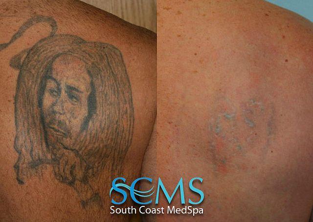 Medium Skin Tone Treatment Still In Progress South Coast Medspa Laser Tattoo Removal Tips To H Laser Tattoo Eyeliner Tattoo Laser Tattoo Removal