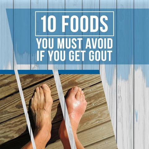 10 Foods You Must Avoid If You Get Gout Gout Foods Good For Gout Foods Bad For Gout