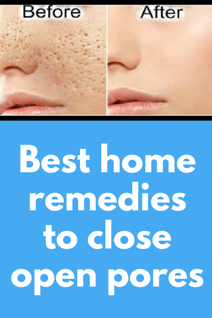 Best Home Remedies To Close Open Pores People With Oily Skin Are More Likely To Have Open Pores However Fo Facial Skin Care Skin Care Methods Skin Care Pores