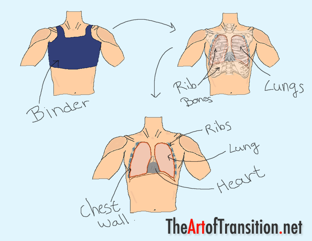Top 8 Chest Binding Dangers Ftm Transition