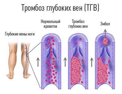 Тромбоз ноги симптомы