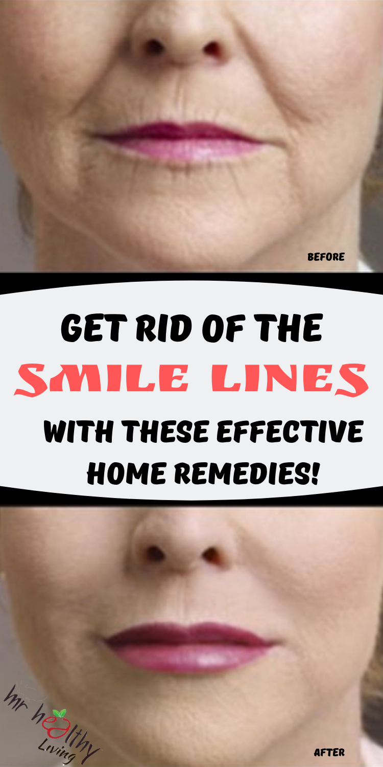 Get Rid Of The Smile Lines With These Effective Home Remedies How To Line Lips Skincare Facts Best Facial Cleanser