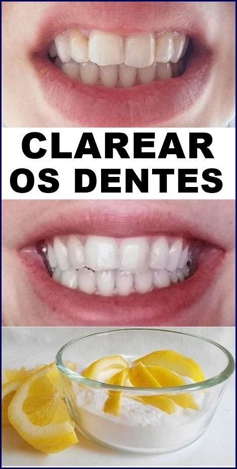 Como Clarear Os Dentes Naturalmente Em Casa Passo A Passo Com