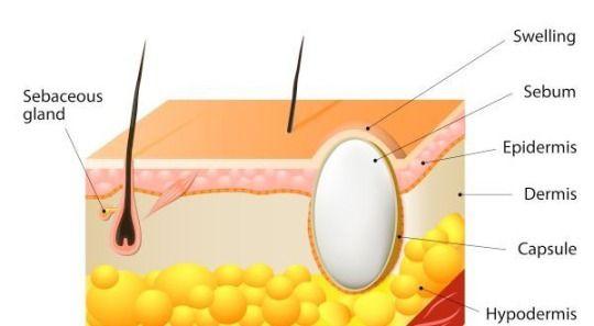 Sebaceous Cyst On Back Symptoms And Removal Sebaceous