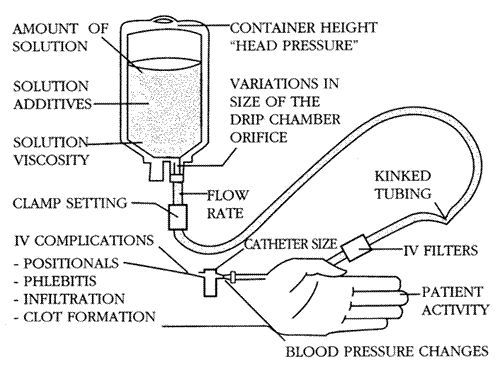iv cannula parts and associated plications iv cannulla Interperitoneal Shot Diagram iv cannula parts and associated plications