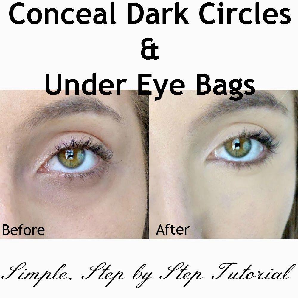 how to stop dark circles under eyes