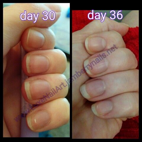 One Week Of Nail Growth After Taking Beauty Boost Vitamins By Jamberry So Healthy And Strong Too Nails Nailpromote Biotin Beautyboost