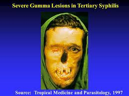 gummas syphilis pictures - Google Search | Tertiary ...