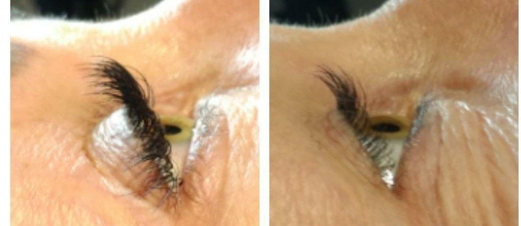 #Eyelash Extensions
