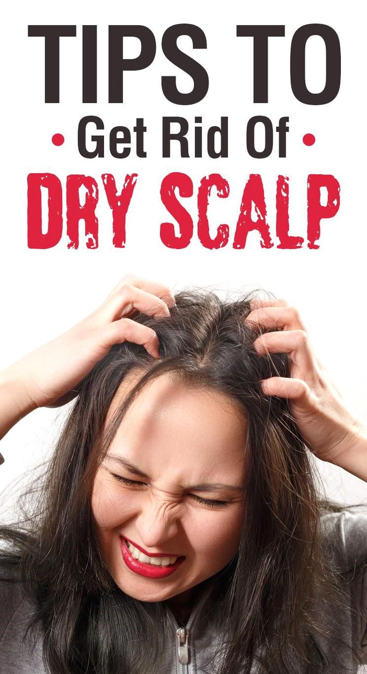 58fc55749bbac18aee0007a77af0aaf5 - How To Get Rid Of Dry Scalp Without Washing