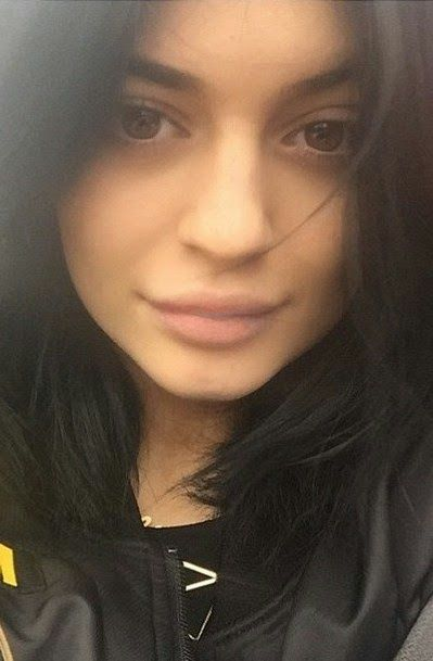 NIGERIAN TOP SECRET: Kylie Jenner still insisting her pout is the resul...