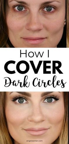 How to Cover Dark Under Eye Circles - Hello Gorgeous, by Angela Lanter #darkcircle