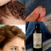 Vinegar Nutritive Rinse Grow New Hair Alopecia Baldness.