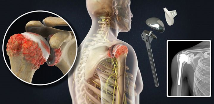Orthopedic surgery shoulder replacement surgery