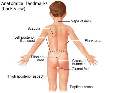 Pilonidal Disease Causes Symptoms Diagnosis Treatment And