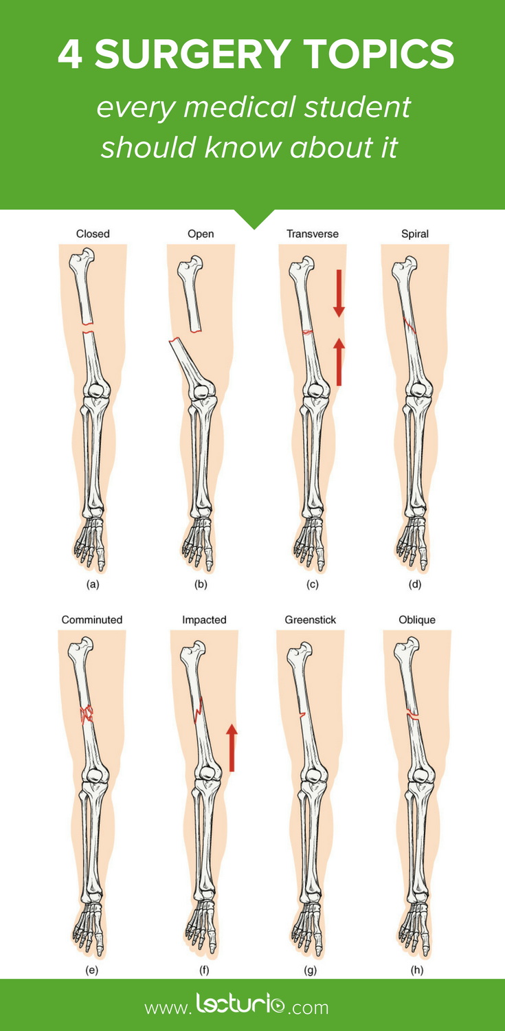 Types Of Bone Fractures Imaging And Management Bone Fracture And