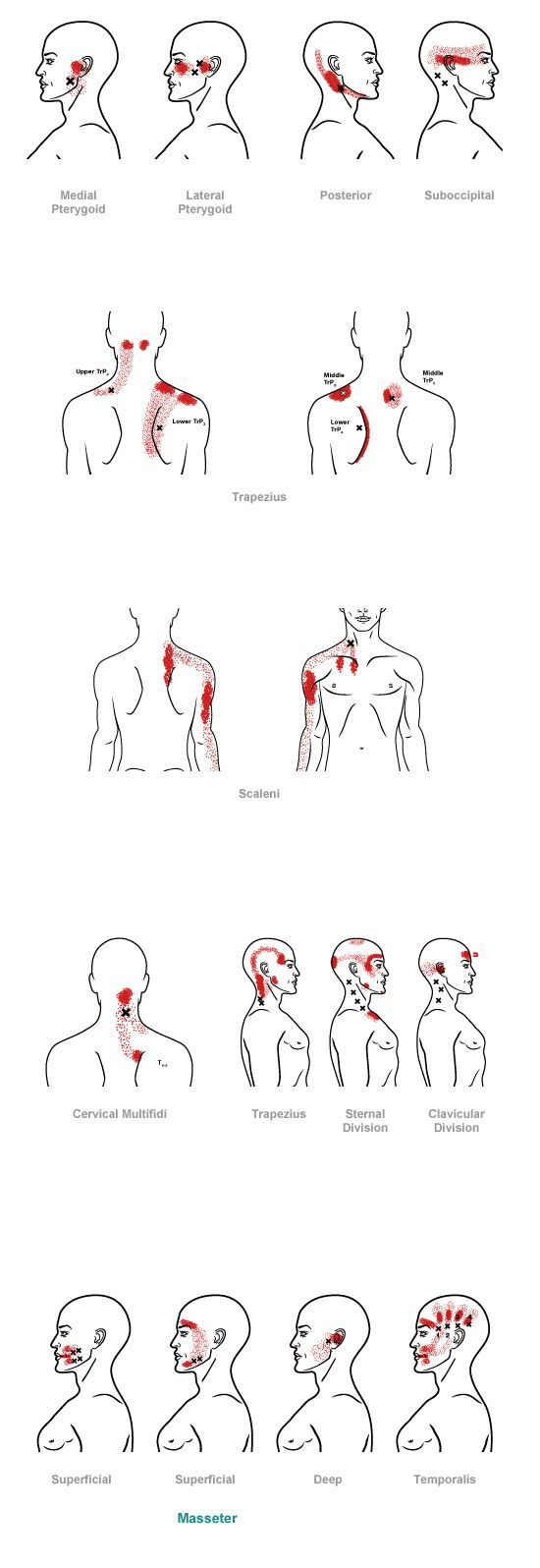 trigger point referral pain pattern for the head & neck