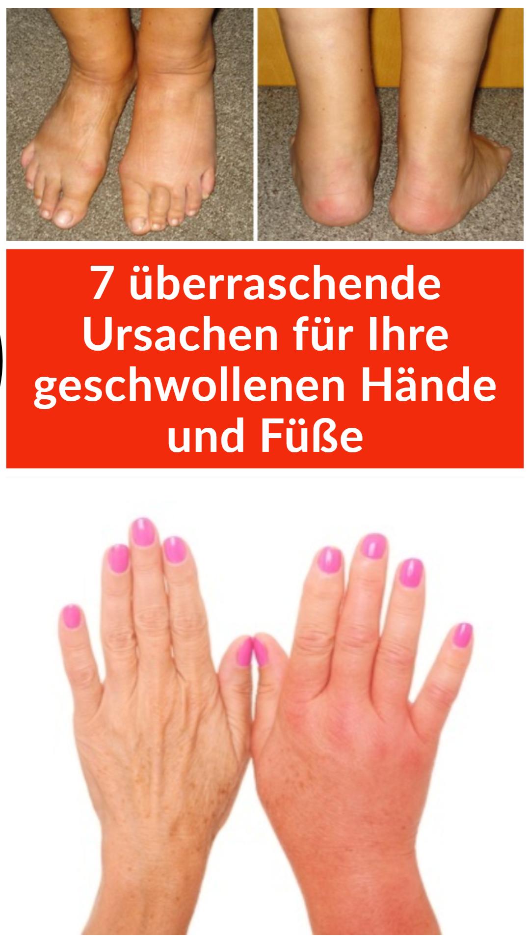 Wie Sie Ihre Hände und Füße schlank machen