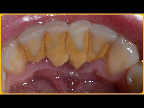 59278f0ddc86b1a23de2490333242f9b - How To Get Rid Of Black Tartar On Teeth